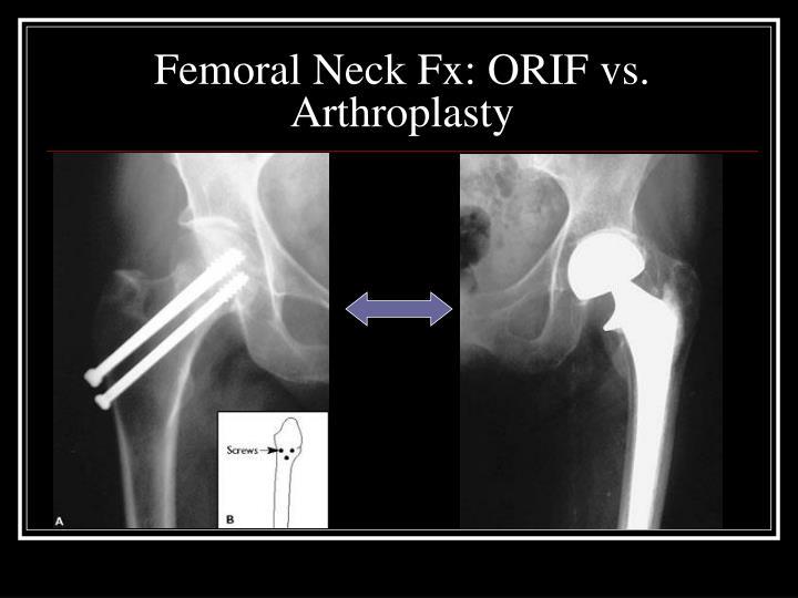 Femoral Neck Fx: ORIF vs. Arthroplasty