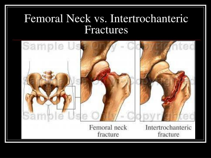 Femoral Neck vs. Intertrochanteric Fractures