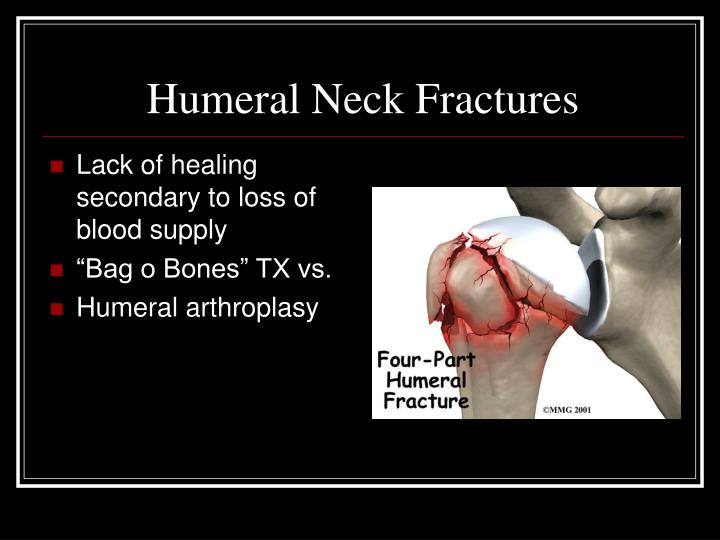 Humeral Neck Fractures