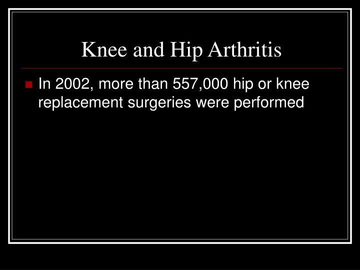 Knee and Hip Arthritis