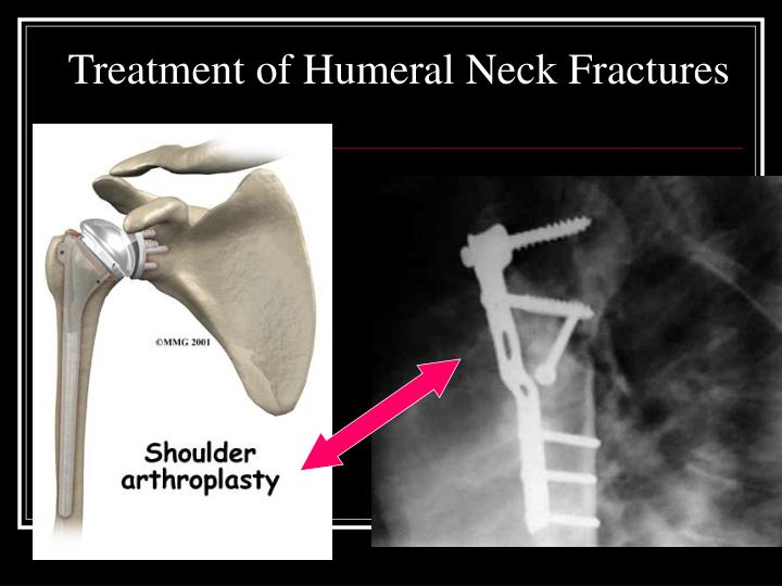 Treatment of Humeral Neck Fractures