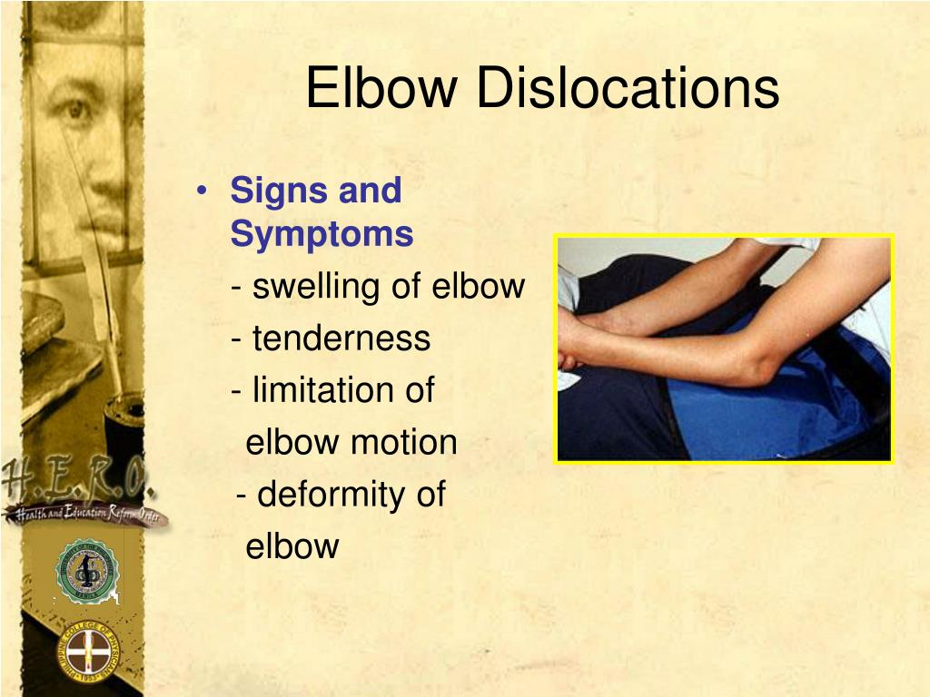Elbow Dislocations
