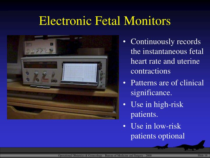 Electronic Fetal Monitors