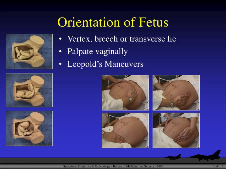 Orientation of Fetus