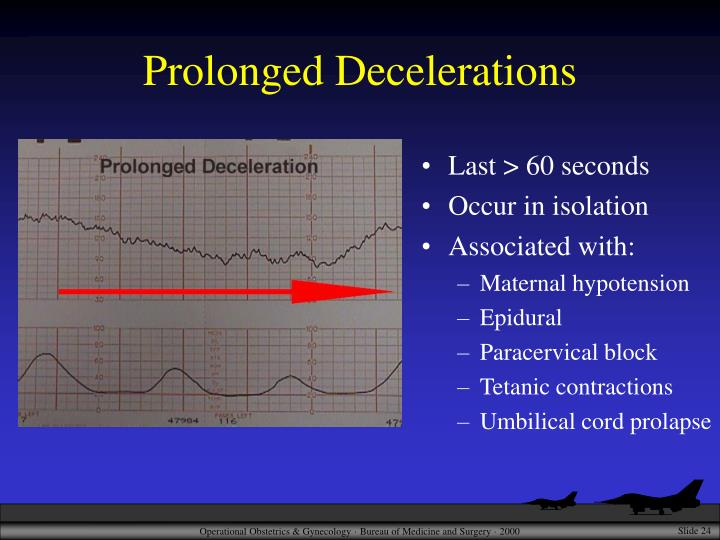 Prolonged Decelerations