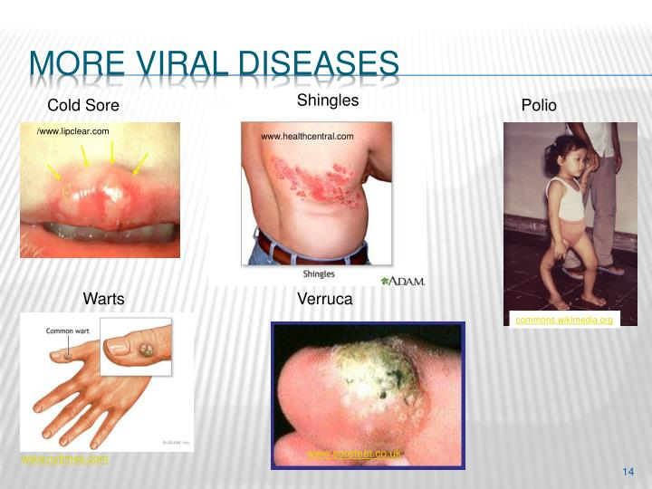 More Viral diseases