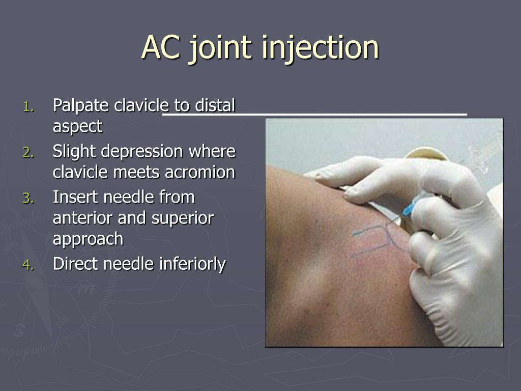 AC joint injection