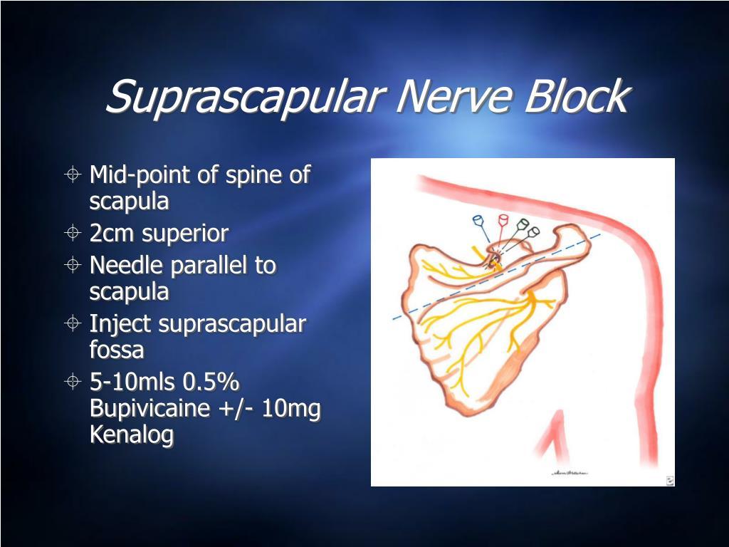 Suprascapular Nerve Block