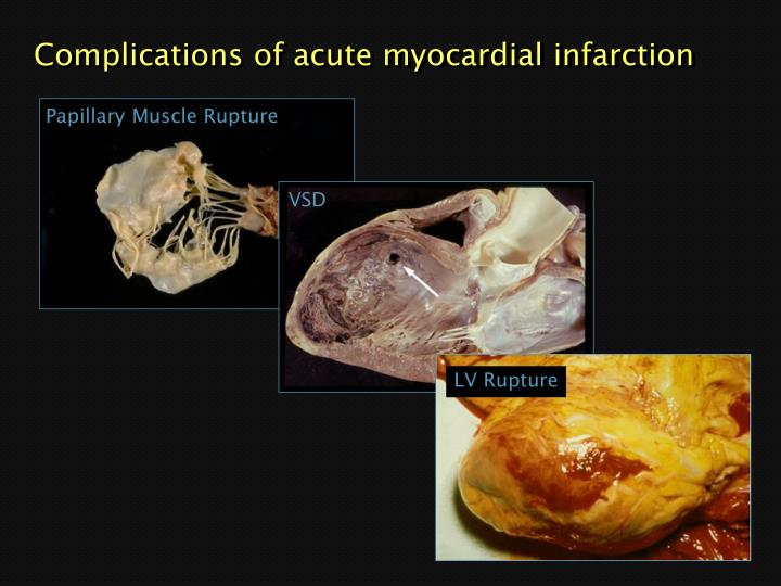 Complications of acute myocardial infarction