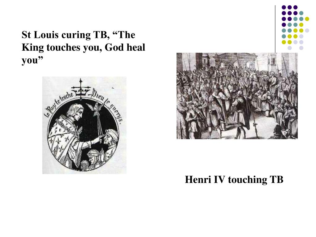 "St Louis curing TB, ""The King touches you, God heal you"""