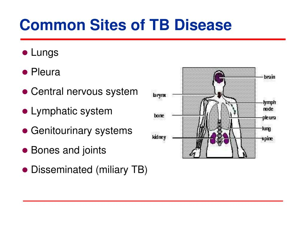 tuberculosis is a common disease Some of the common reasons to order a chest x-ray test are listed below:  tuberculous pleuritis may occur in some people who have the lung disease from tuberculosis.