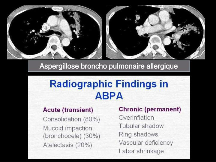 Aspergillose broncho pulmonaire allergique