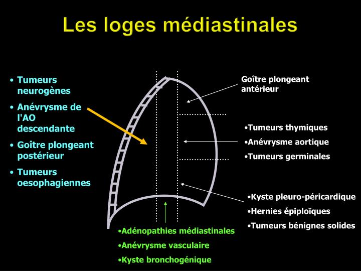 Tumeurs neurogènes