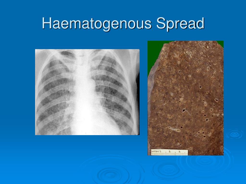 Haematogenous Spread