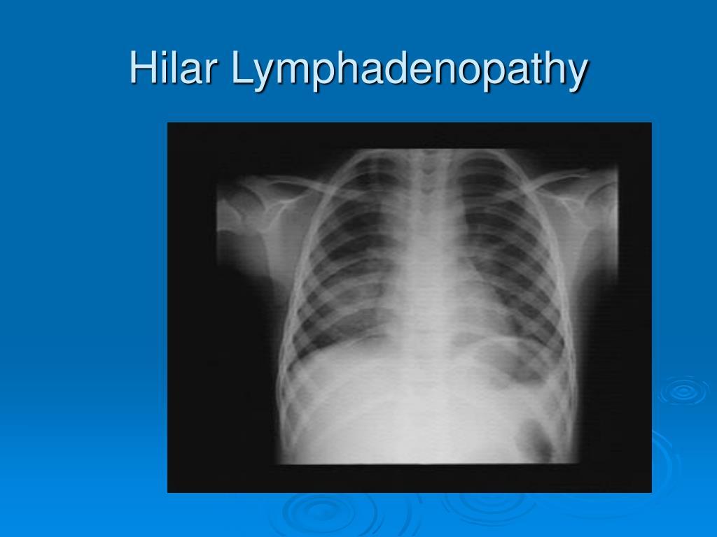 Hilar Lymphadenopathy