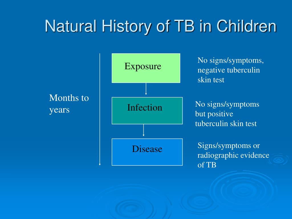 Natural History of TB in Children