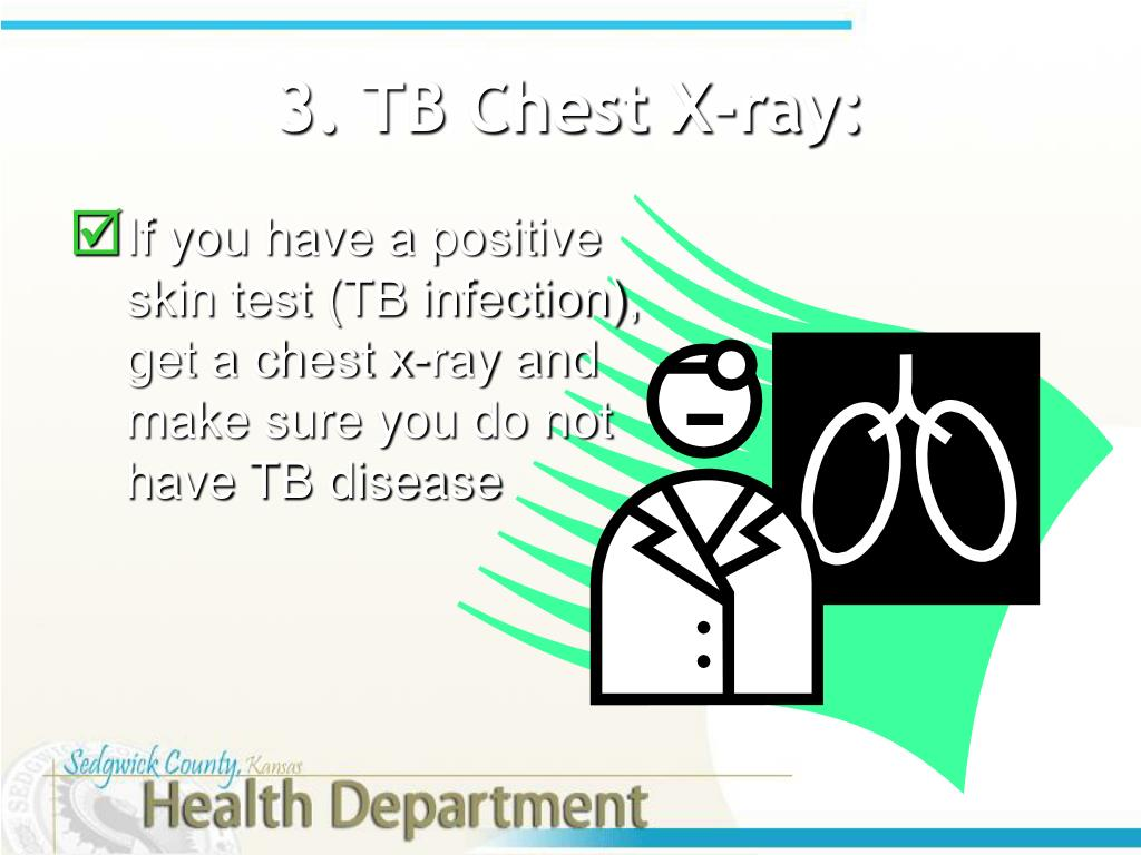 3. TB Chest X-ray: