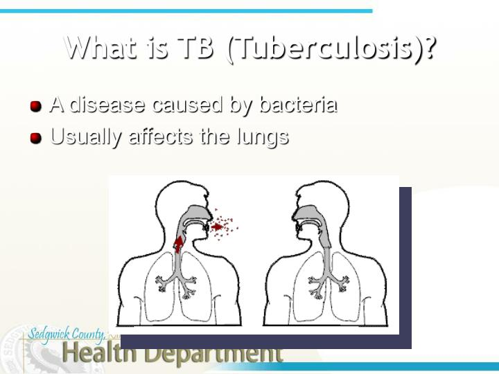 What is tb tuberculosis