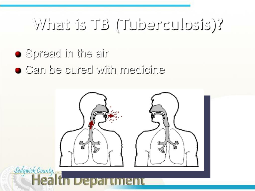 What is TB (Tuberculosis)?