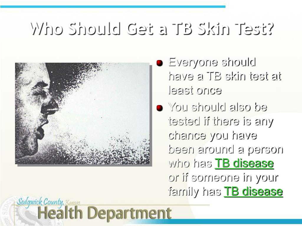 Who Should Get a TB Skin Test?