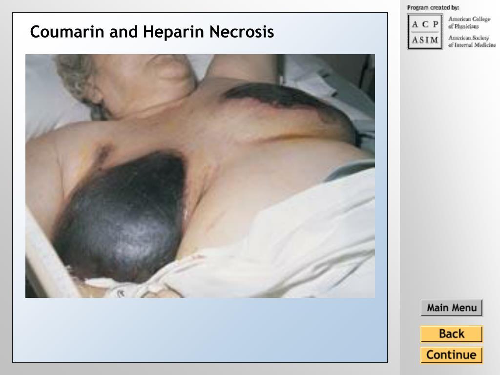 Coumarin and Heparin Necrosis