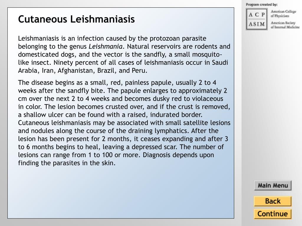 Cutaneous Leishmaniasis