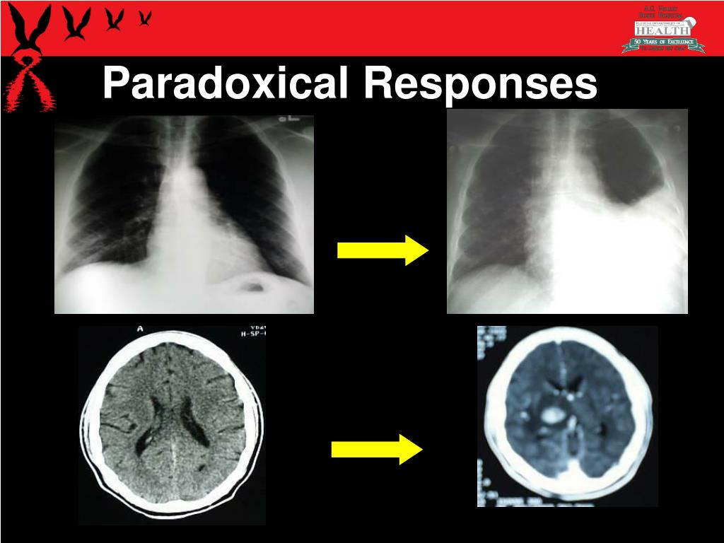 Paradoxical Responses