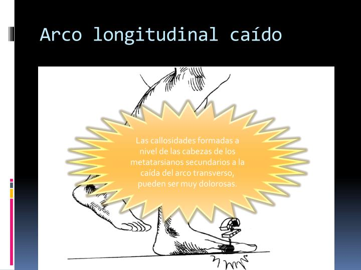 Arco longitudinal caído