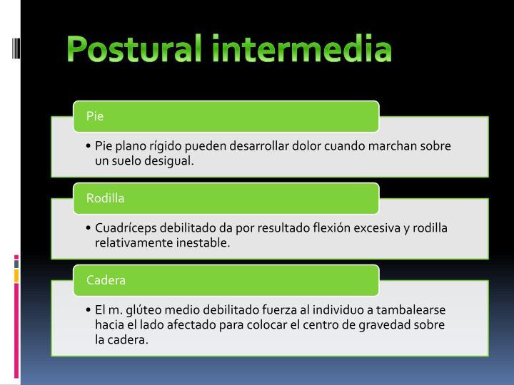 Postural intermedia