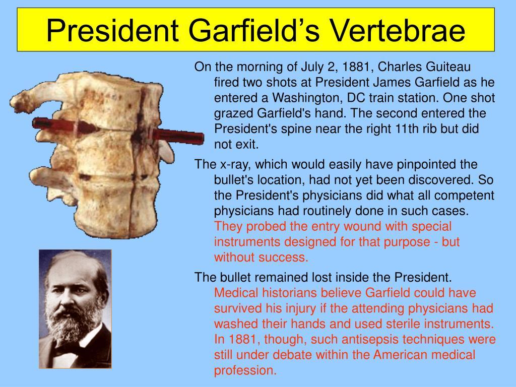 President Garfield's Vertebrae