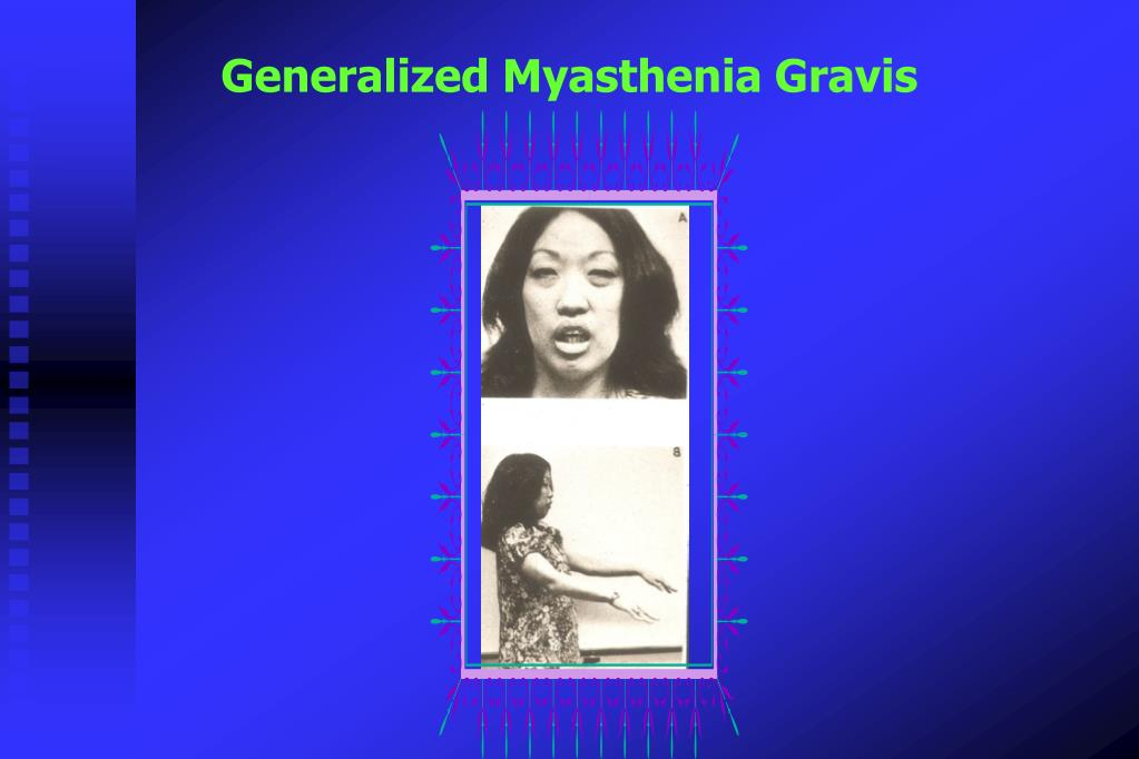 Generalized Myasthenia Gravis