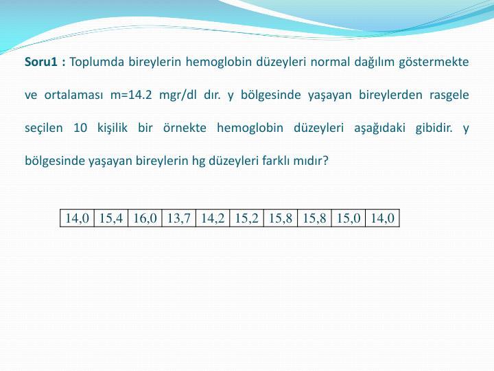 Soru1 :