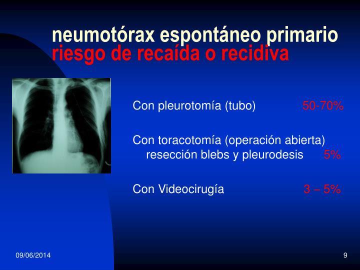 neumotórax espontáneo primario