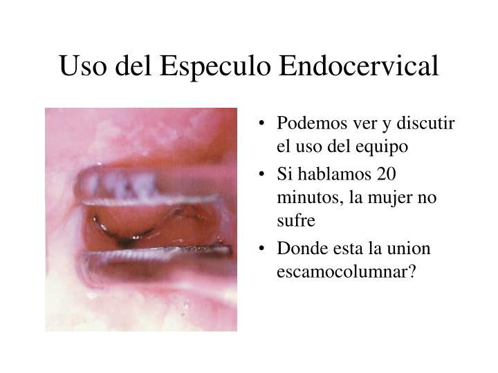 Uso del Especulo Endocervical