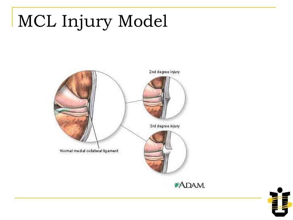 MCL Injury Model