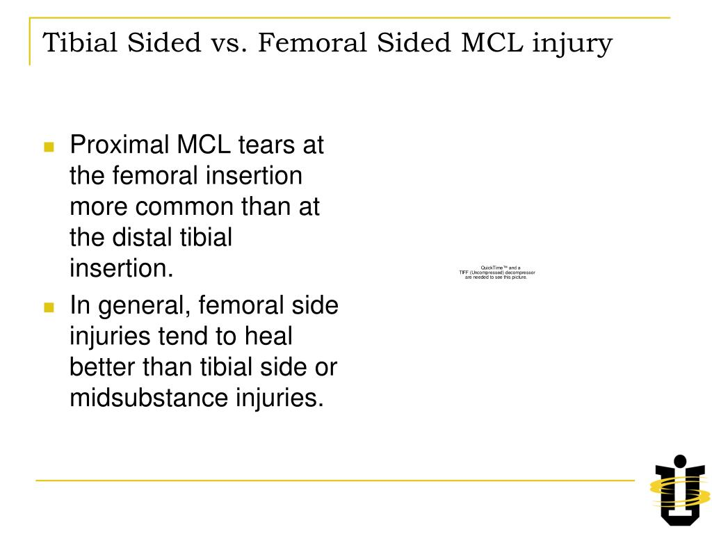 Tibial Sided vs. Femoral Sided MCL injury