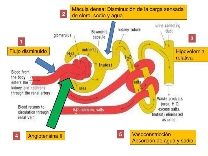 Mácula densa: Disminución de la carga sensada