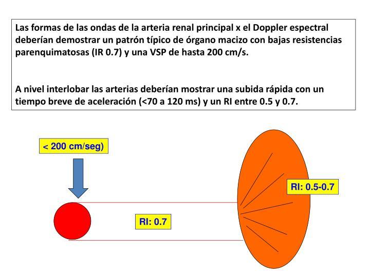 Las formas de las ondas de la arteria renal principal x el Doppler espectral deberían demostrar un patrón típico de órgano macizo con bajas resistencias parenquimatosas (IR 0.7) y una VSP de hasta 200 cm/s.