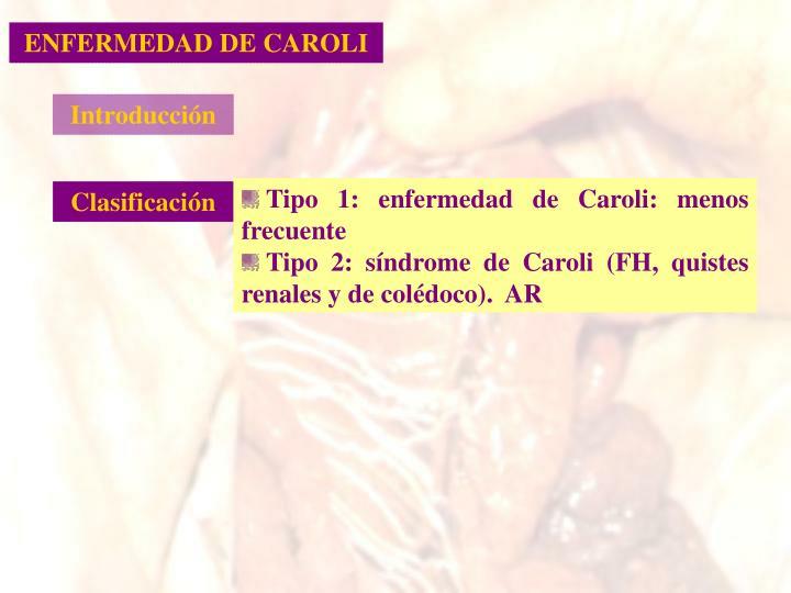 ENFERMEDAD DE CAROLI