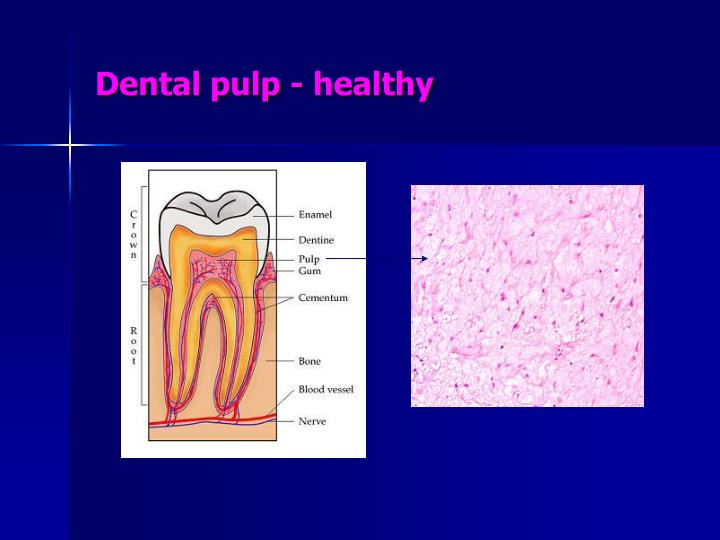 Dental pulp healthy