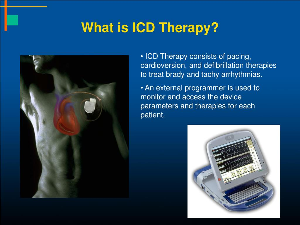 What is ICD Therapy?