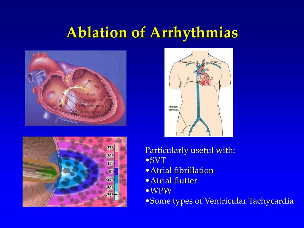 Ablation of Arrhythmias