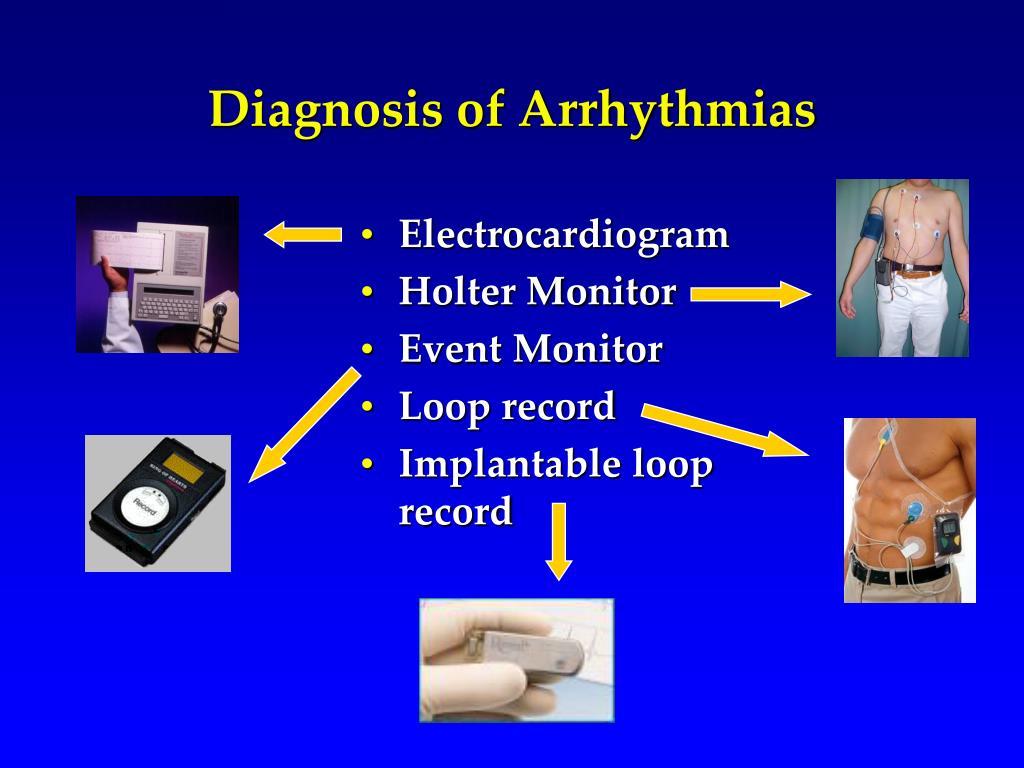 Diagnosis of Arrhythmias