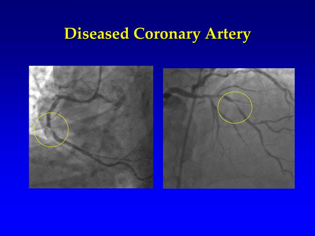 Diseased Coronary Artery