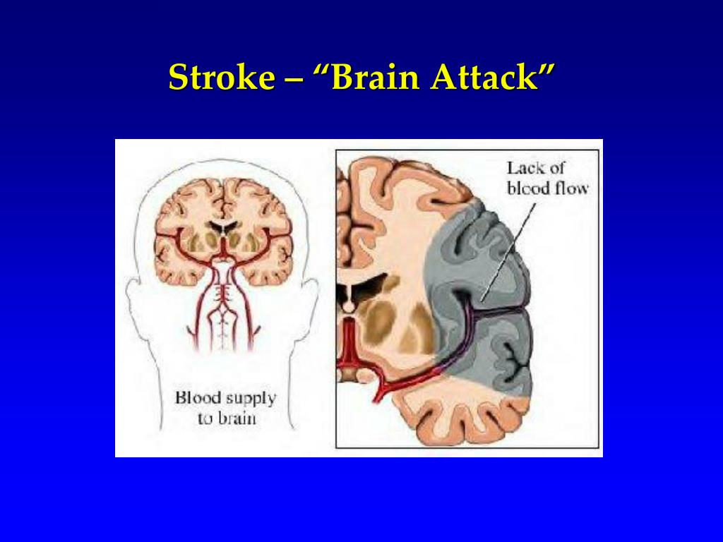 """Stroke – """"Brain Attack"""""""
