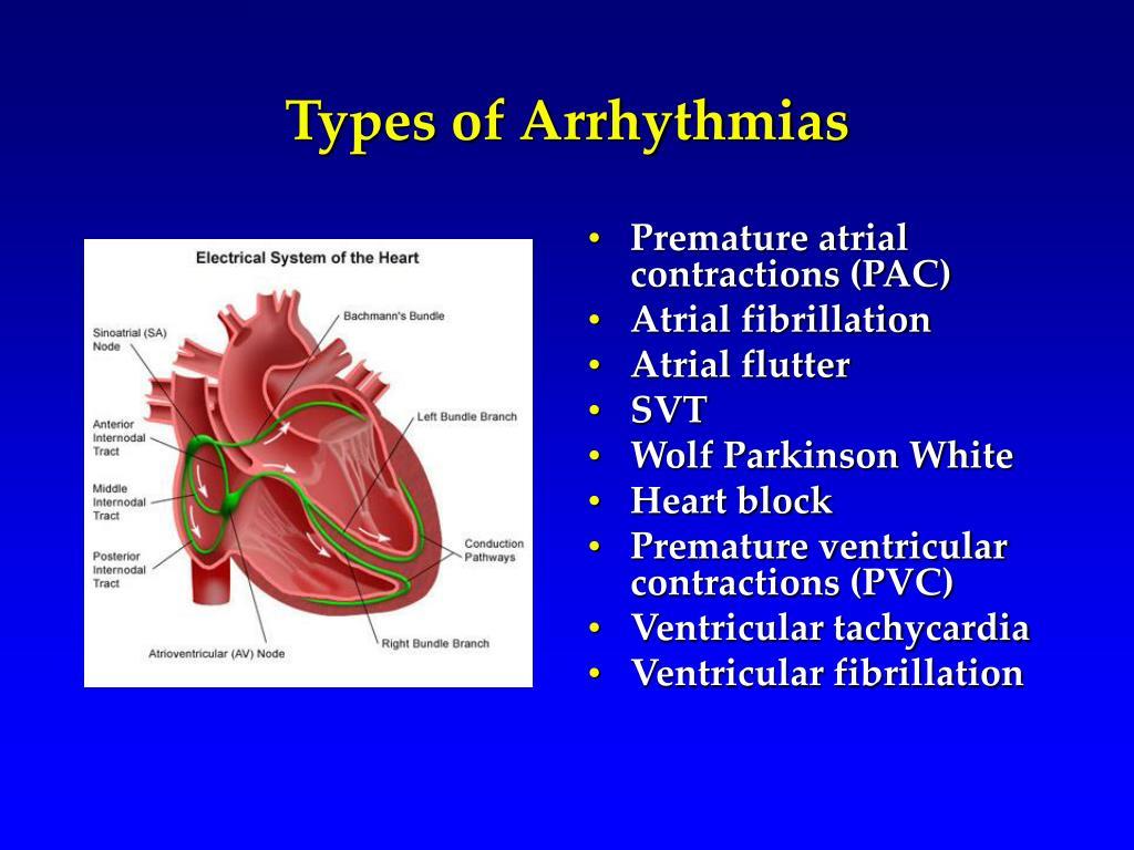 Types of Arrhythmias