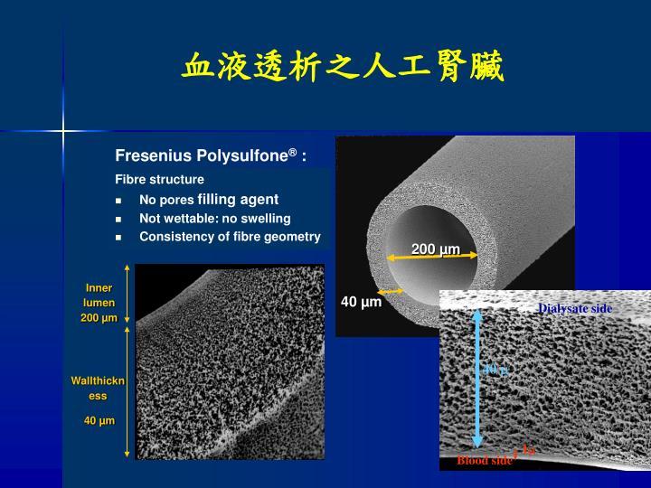 Inner lumen 200 µm