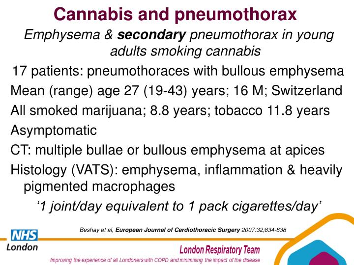 Cannabis and pneumothorax