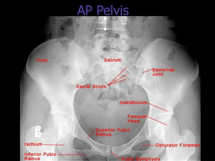 AP Pelvis