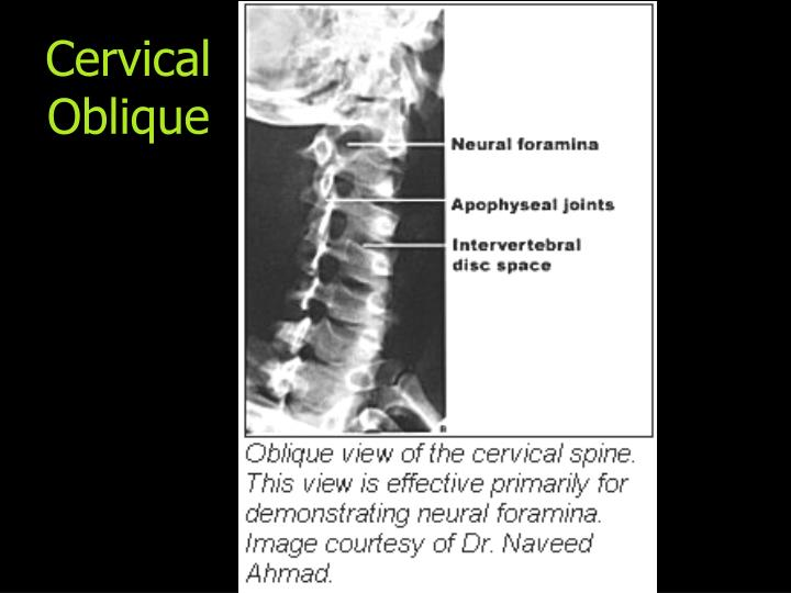 Cervical Oblique